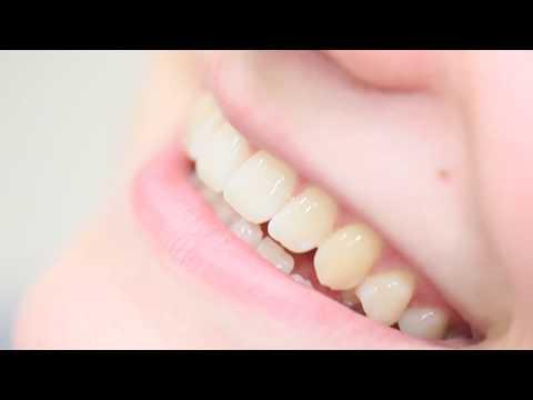 Zahnersatz bei Dr. Hager Zahnärzten