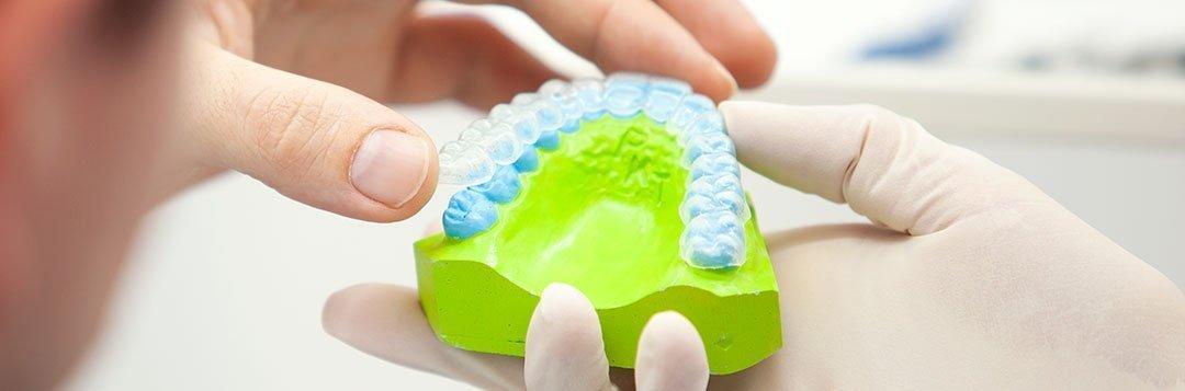 Zahnschiene, Knirscherschiene auf einem Zahnmodell