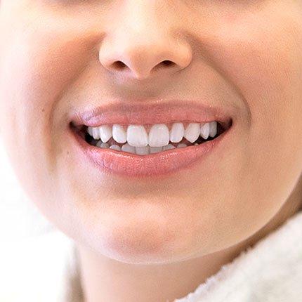 Bleaching - Zahnästhetik