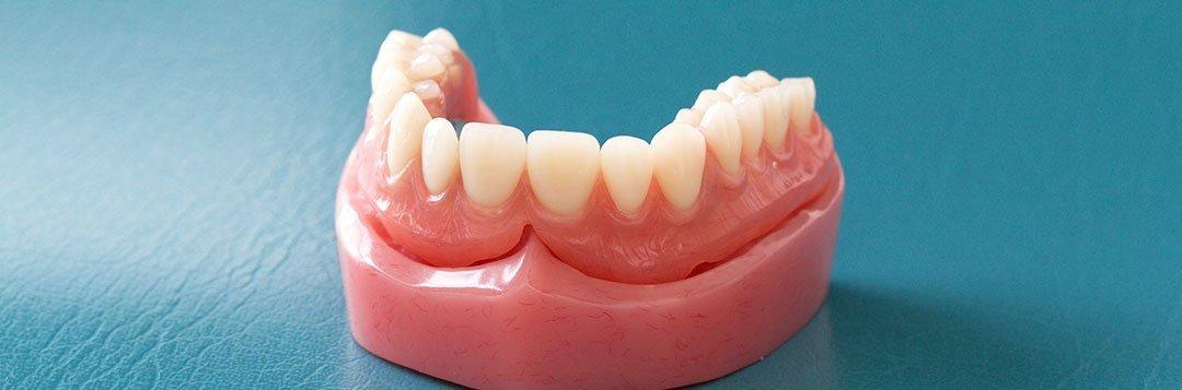 Zahnersatz Totalprothese