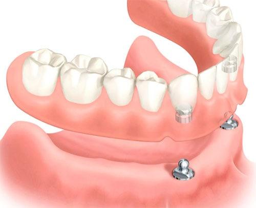 Zahnimplantation für alle Zähne