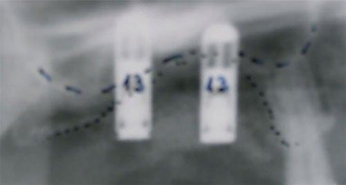 Comparison 2 - Roentgen - Implants - Bone augmentation - Dental Implants | Dr. HAGER