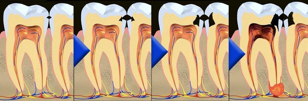 Verlauf bzw. die verschiedenen Stadien einer Karies in vier Bildern