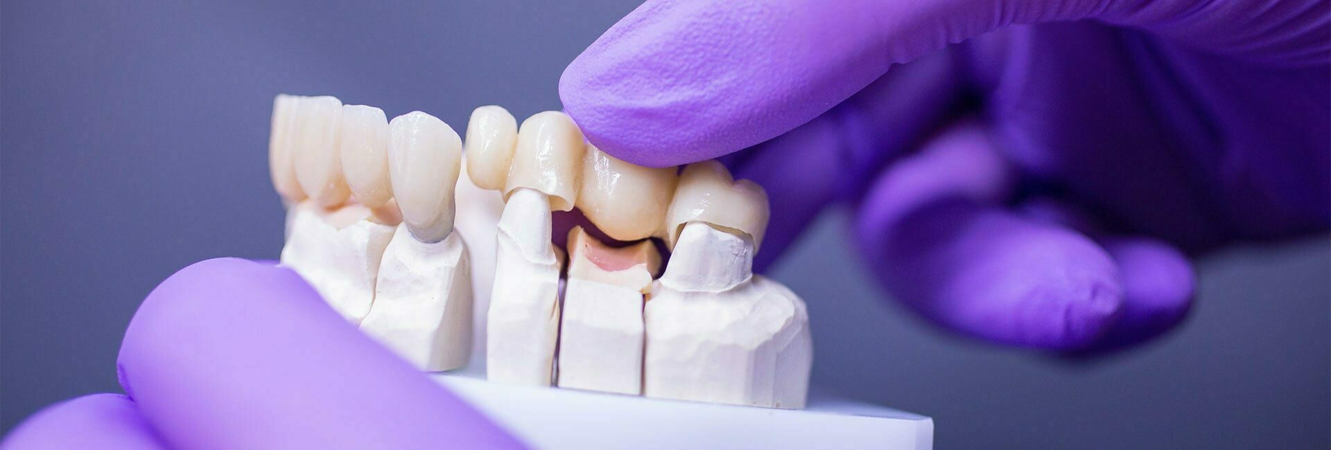 Dentures and Dental Prostheses