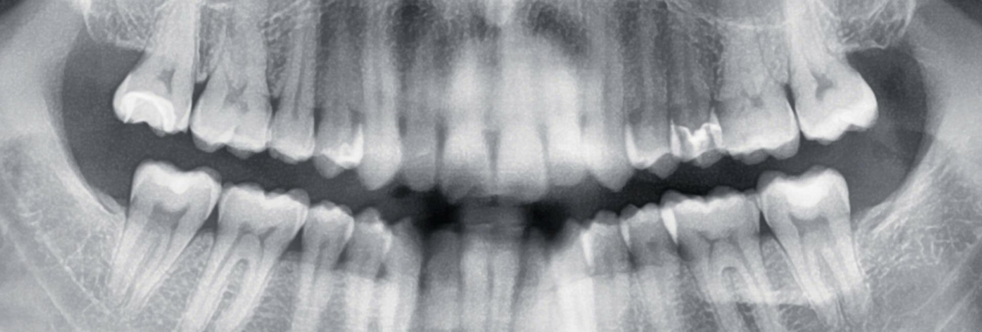 Röntgenbild mit dem Befund Karies