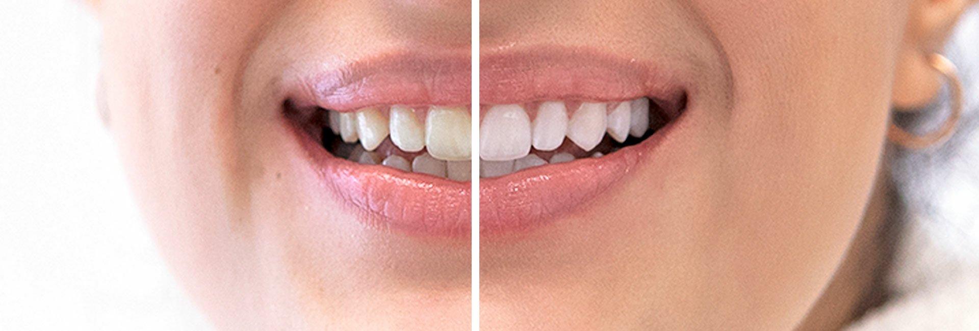 Bleaching der Zähne vorher und nachher Vergleichsbild