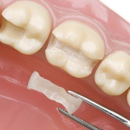 Kiefer mit ausgeschliffenem Zahn und das Keramikinlay welches als Ersatz eingesetzt werden soll