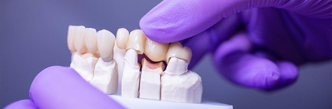 eine Zahnbrücke - Keramikimplantat